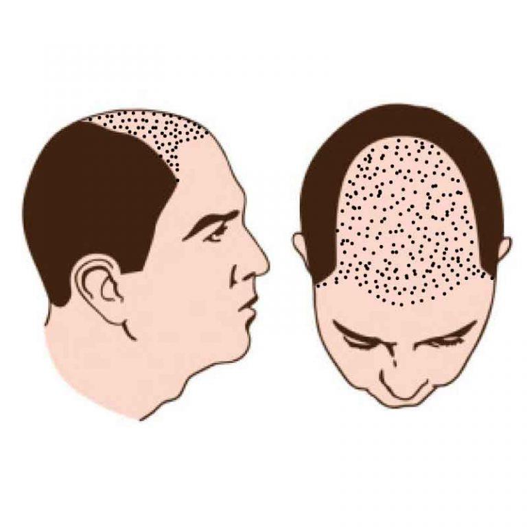 Halber Kopf