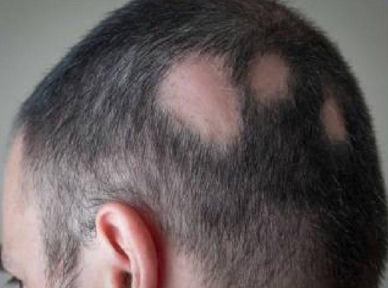Alopezie Haarausfall